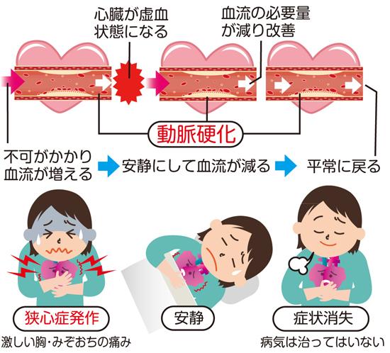 Symptom-of-angina